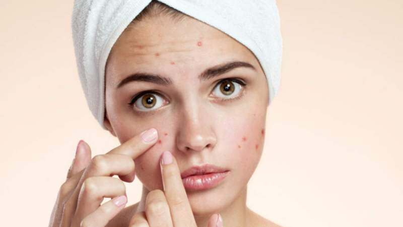 Stay Away From Pimple Outbreak by Having Regular Sleep