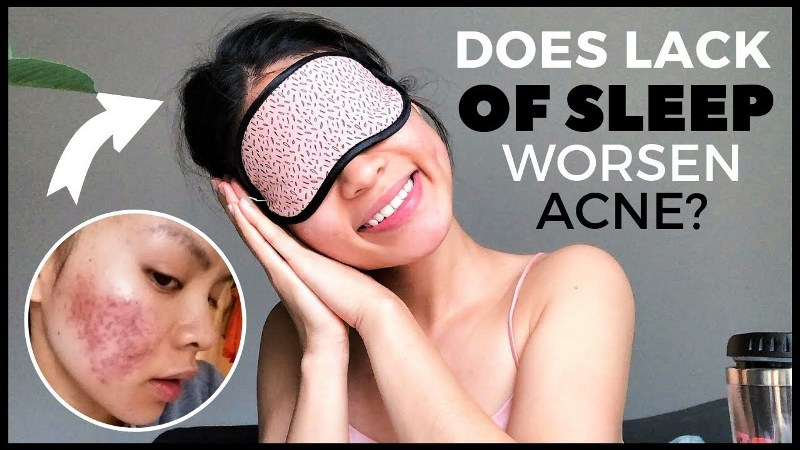 Do Rise of Hormones Due To Lack Of Sleep Cause Pimples?