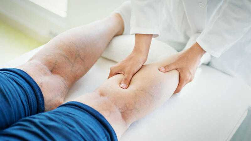 Reliable Treatment Options for Varicose Veins